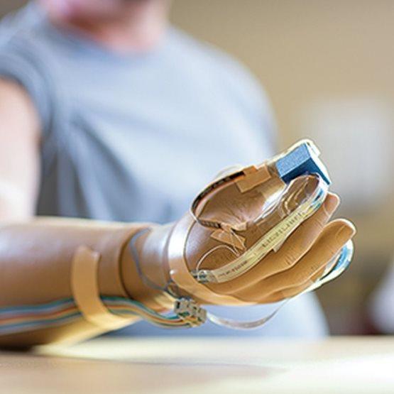 Pesquisadores desenvolvem mão artificial com sensações reais